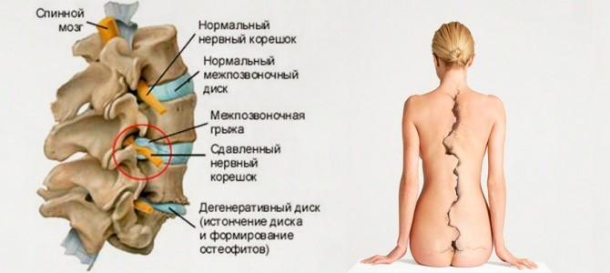 Остеохондроз и его лечение