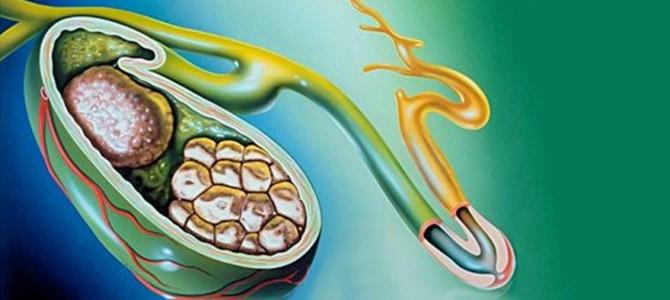 Желчнокаменная болезнь: причины, симптомы, диагностика, лечение