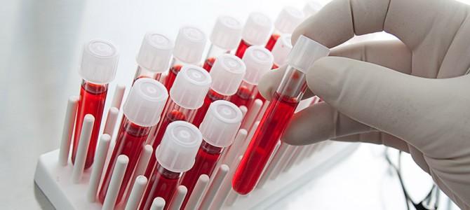 Высокий гемоглобин и эритроцитоз
